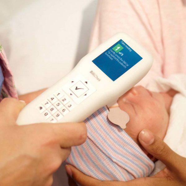 چگونه متوجه زردی نوزاد شویم
