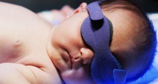 زردی نوزاد و درمان آن